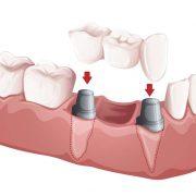 Dentista en Villa del Prado, implantes dentales